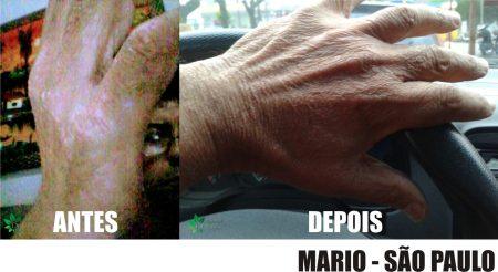 Tratamento Psoríase Mãos