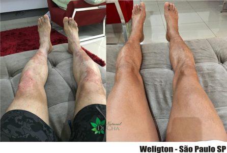 Tratamento Psoríase nas Pernas