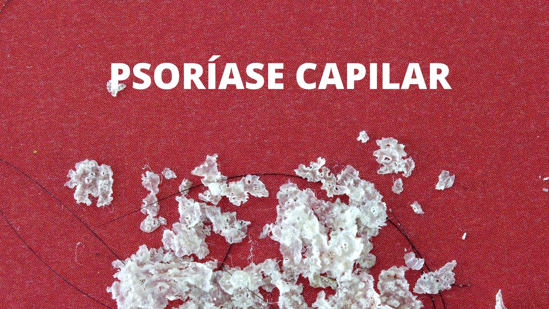 PSORIASE CAPILAR