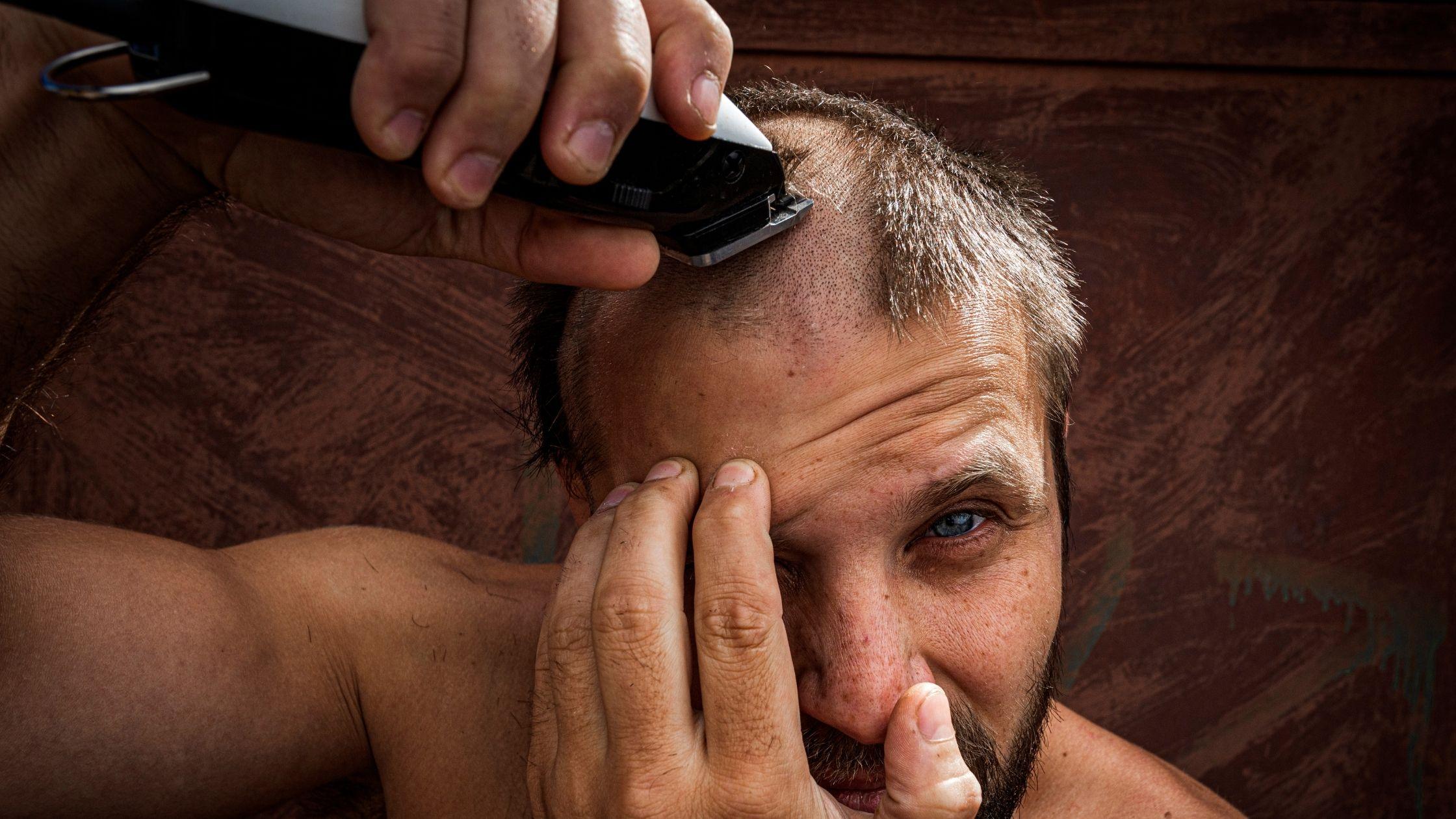 corte de cabelo psoriase